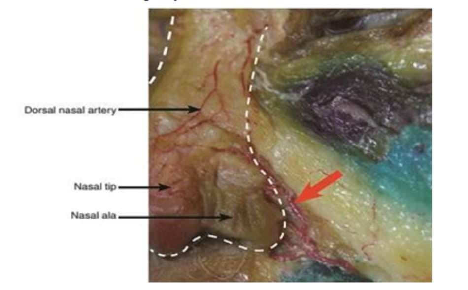 Hình 4.14 ĐM mũi ngoài: phẫu tích. ĐM mũi ngoài nằm trong lớp dưới da (mũi tên); do đó, nó rất dễ bị tổn thương khi tiêm filler vào lớp dưới da
