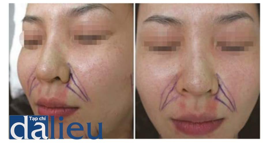 Hình 4.15 Hiện tượng nhạt màu da khi tiêm phong bế thần kinh dưới ổ mắt. Vùng phân bố của ĐM mũi ngoài và ĐM môi trên bị mất màu do phong bế thần kinh dưới ổ mắt bằng epinephrine