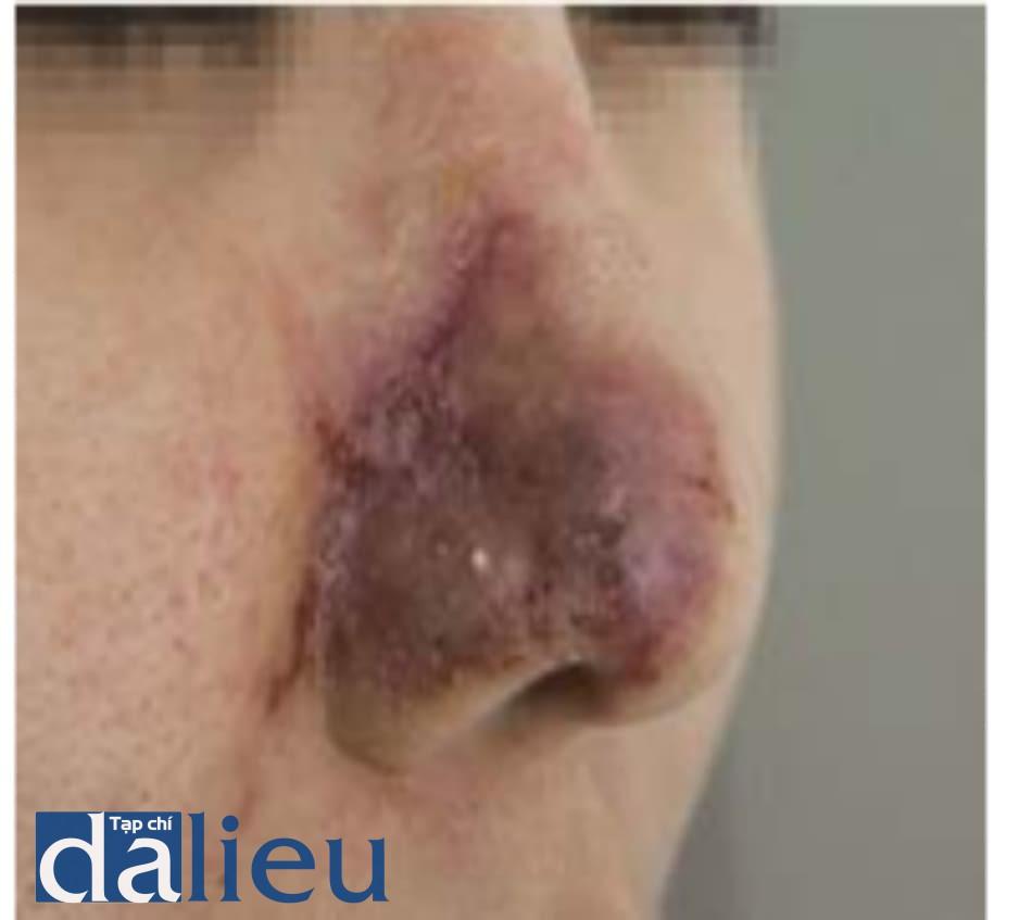Hình 4.17 Tổn thương mạch máu do tiêm filler vào nếp mũi má. Thuyên tắc động mạch mũi ngoài điển hình 4 ngày sau tiêm filler HA chỉnh nếp mũi má