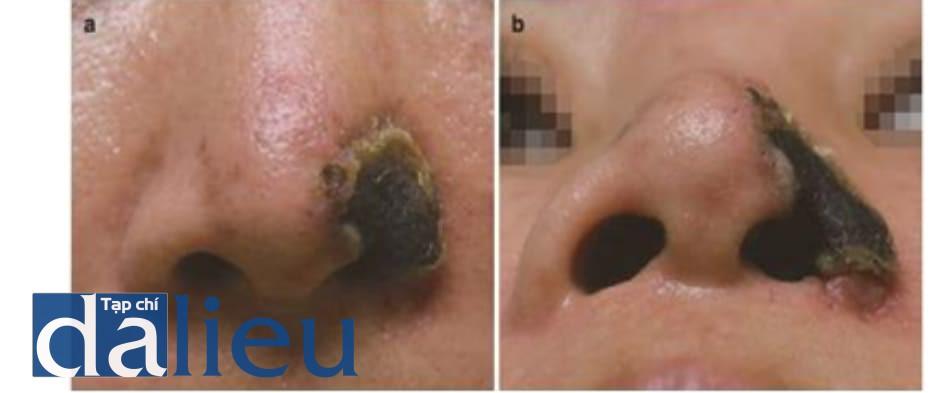 Hình 4.21 Hoại tử da toàn bộ do tổn thương mạch máu sau tiêm filler nếp mũi má. 1 tháng sau tiêm filler HA vào nếp mũi má. Hoại tử da toàn bộ xảy ra trên cánh mũi trái do điều trị không hợp lý sau tổn thương ĐM mũi ngoài. (a) Nhìn từ trước. (b) Nhìn từ dưới.