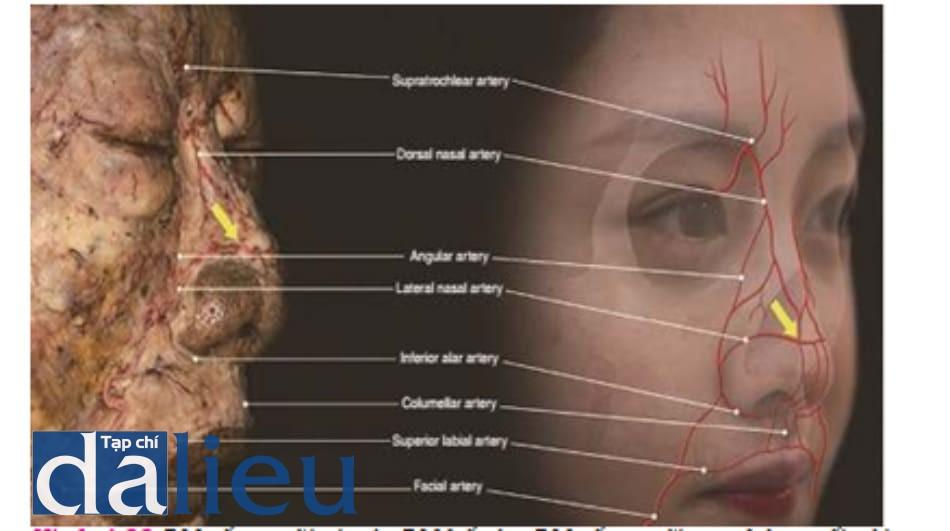 Hình 4.22 ĐM sống mũi và các ĐM kế cận. ĐM sống mũi tạo thông nối với ĐM mũi ngoài (mũi tên) và chạy qua lớp dưới da. Các mạch máu mũi khu trú ở lớp dưới da, nằm nông so với lớp nông cân cơ hạ bì (SMAS)