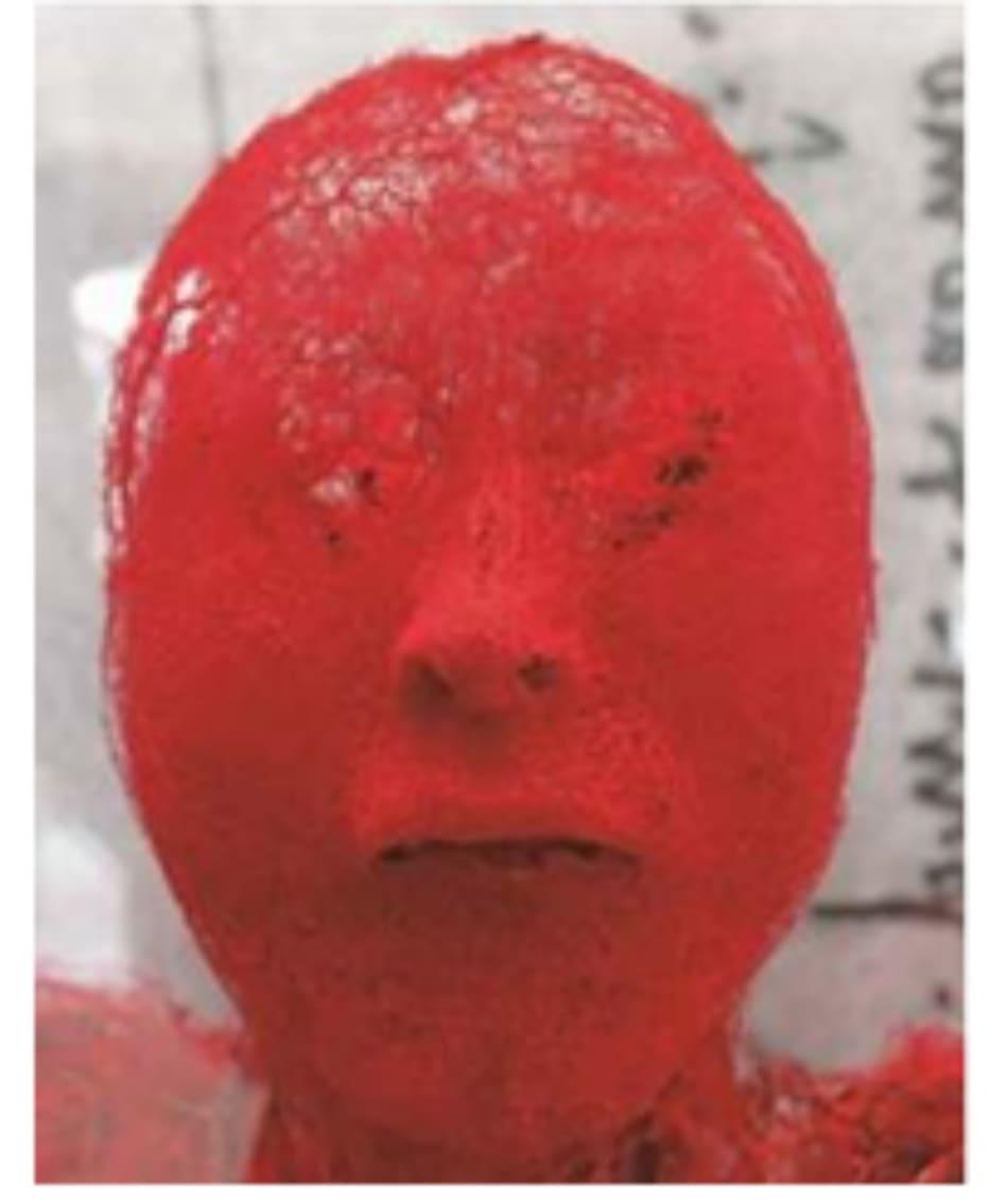 Hình 4.24 Mô hình mạch máu vùng mặt khi tiêm latex vào xác. Rất khó tránh khỏi mạch máu khi tiêm vì chúng nằm rất sát nhau, nhất là ở lớp dưới da, nên điều quan trọng là tiêm vào những vùng tương đối ít mạch máu. (hình chụp tại Trung Quốc)