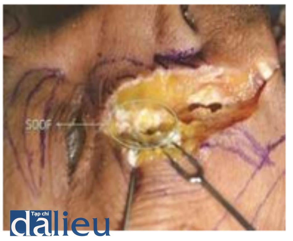 Hình 4.34 Phẫu tích vùng trước hàm trên. Thấy chất filler màu trắng ở lớp SOOF