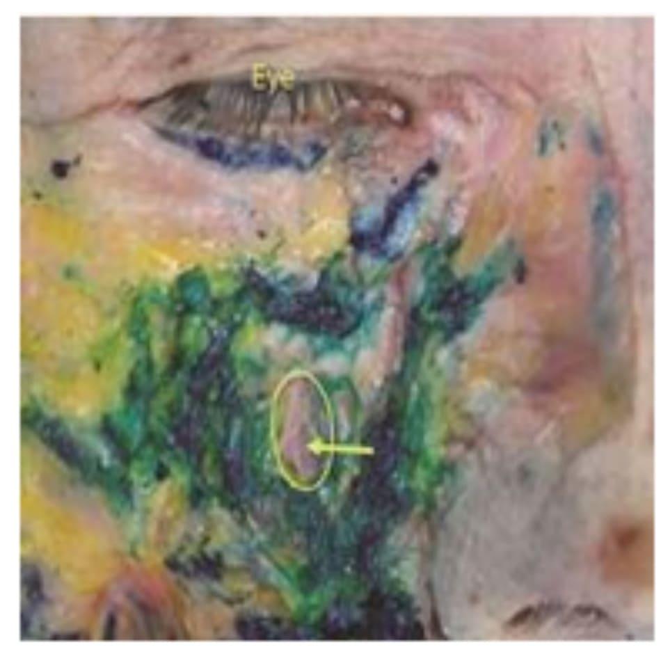 Hình 4.36 Phẫu tích bó mạch - thần kinh dưới ổ mắt. Bó mạch – thần kinh dưới ổ mắt được chỉ bằng mũi tên sau khi bỏ lớp SOOF. Thuốc nhuộm xanh chỉ ra filler được tiêm để nâng vùng trước hàm trên