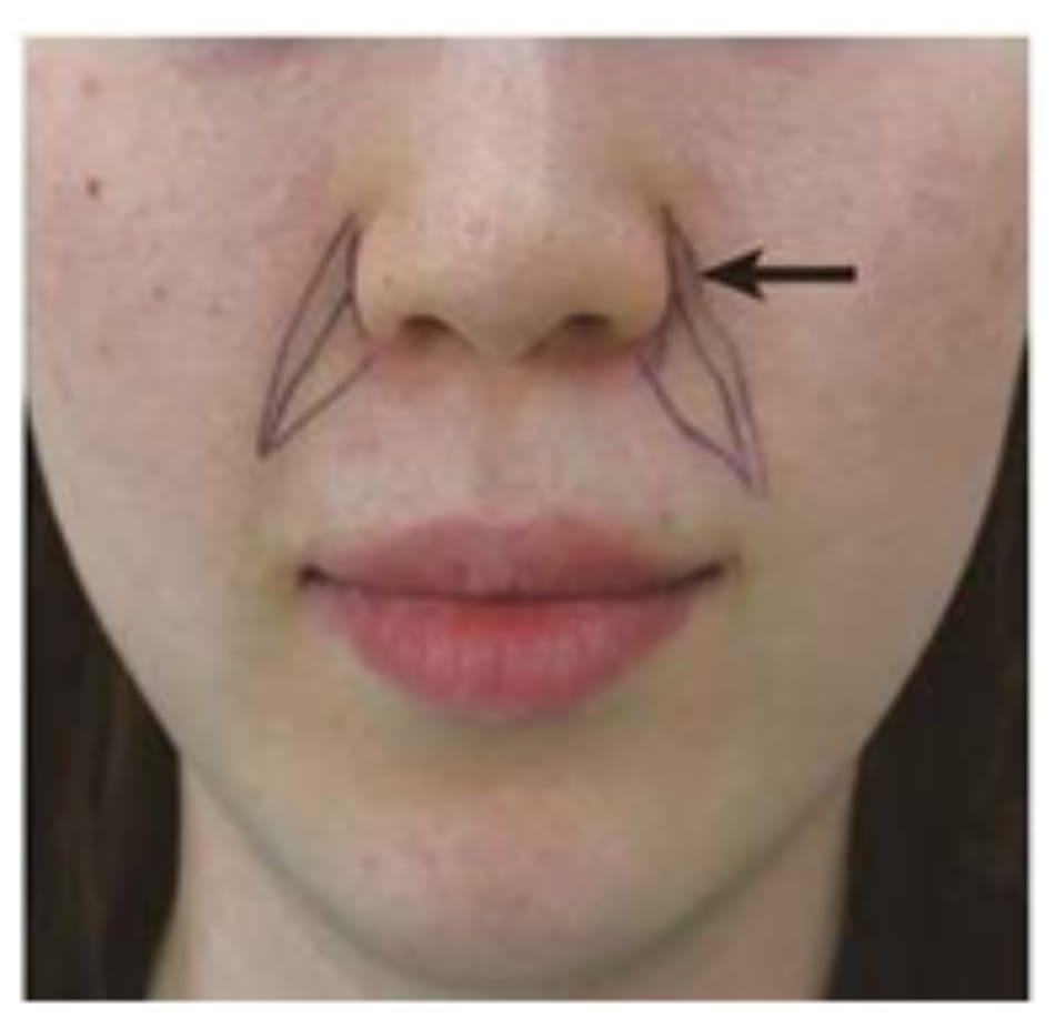 Hình 4.37 Vùng nguy hiểm khi tiêm nếp mũi má.