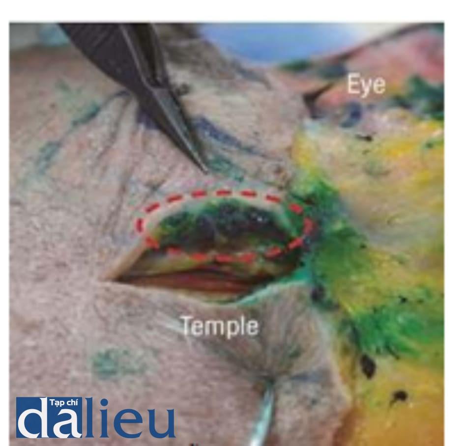 Hình 4.41 Phẫu tích khi tiêm vùng thái dương. Thấy chất filler được nhuộm xanh. Bên dưới filler, có thể thấy nhiều lớp thái dương. Lớp dưới da tương đối an toàn và cần ít filler hơn so với khi tiêm sâu