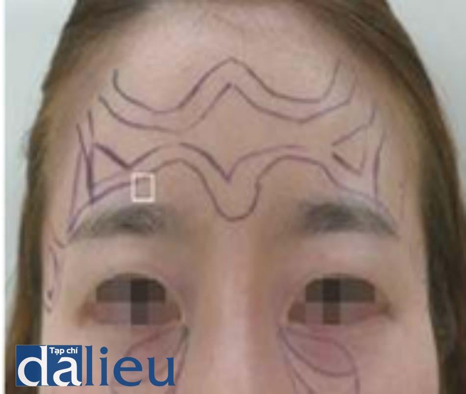 Hình 4.6 Vị trí thoát ra của ĐM trên o mắt. Nơi thoát của ĐM (khung vuông)