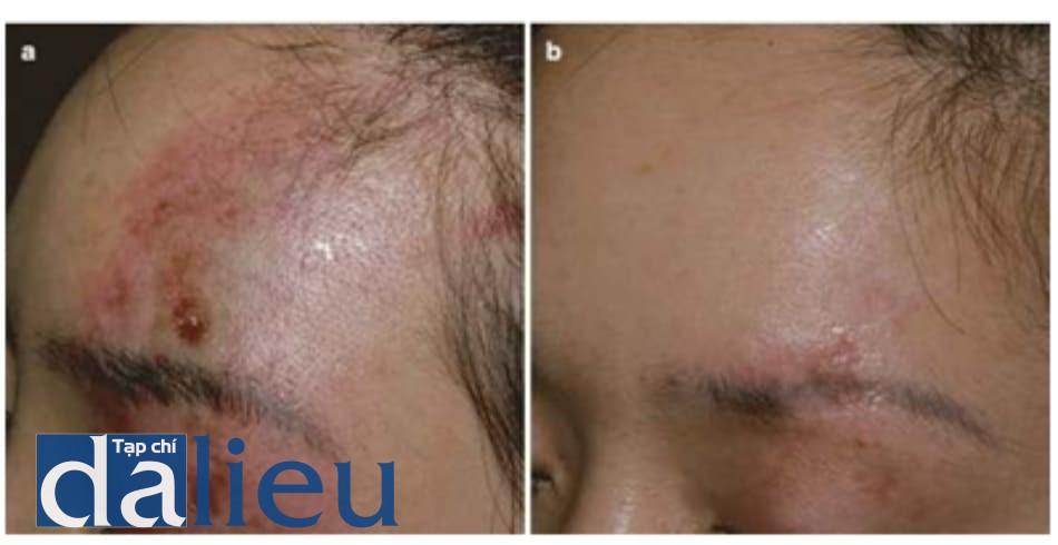 Hình 4.7 ĐM trên ổ mắt bị tổn thương. (a) 3 ngày sau tiêm filler canxi hy- droxyapatite vào trán. Các phân bố của ĐM trên ổ mắt bị tổn thương. Các vùng tổn thương sẽ để lại hậu quả. (b) 2 tuần sau điều trị