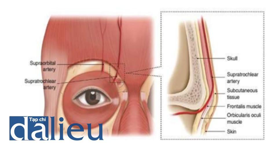 Hình 4.8 Vị trí của ĐM trên ròng rọc. Các nhánh nông của ĐM này chạy ngang tấm dưới da (ô vuông chấm); do đó, khi tiêm lớp dưới da nhằm chỉnh nếp nhăn diện trên gốc mũi cần hết sức cẩn trọng. Nhánh nông là chủ yếu
