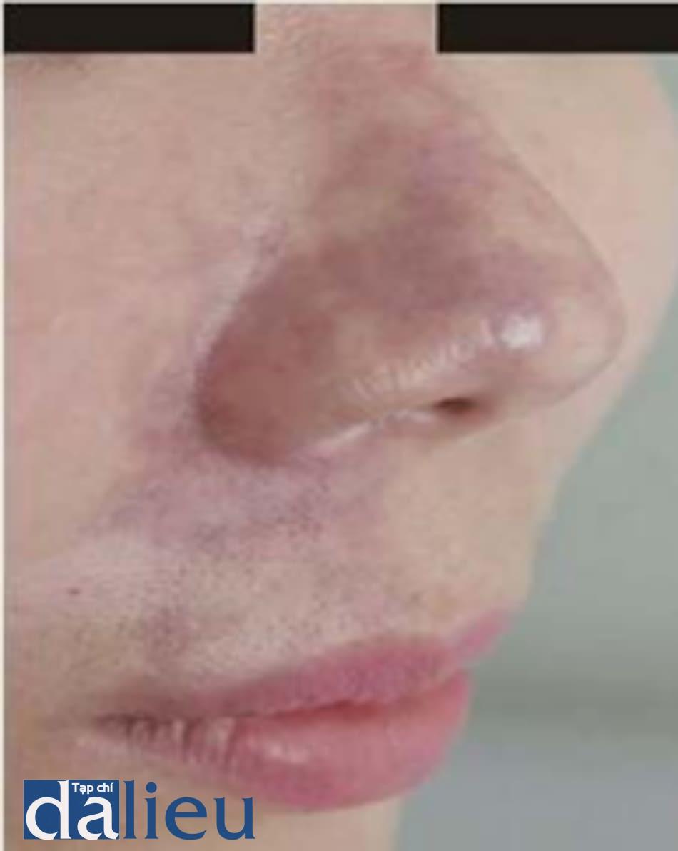 Hình 5.13 Hoại tử lan tỏa của ĐM mũi ngoài. Hoại tử lan tỏa khu vực phân bố ĐM mũi ngoài sau chỉnh nếp mũi má