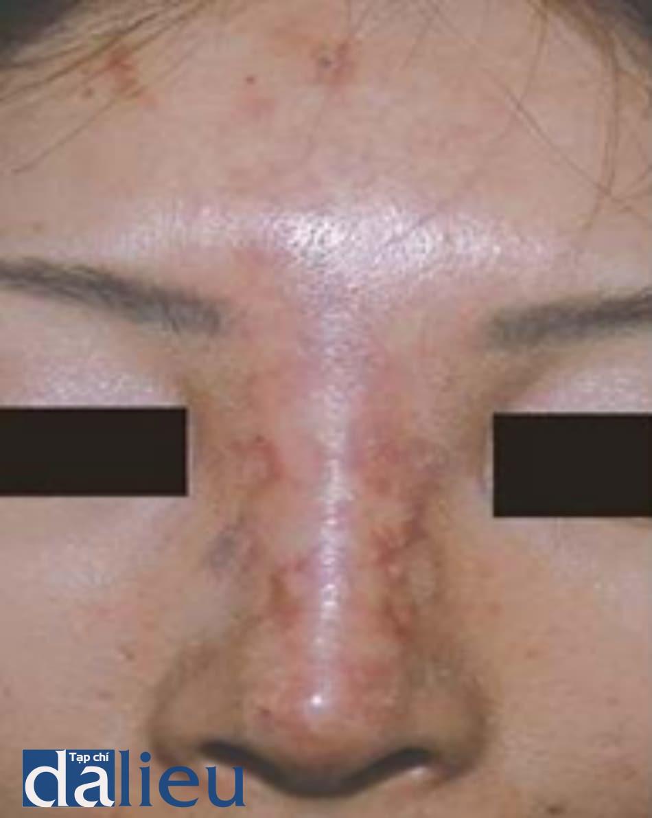 Hình 5.14 Hoại tử lan tỏa của ĐM sống mũi. Hoại tử lan tỏa khu vực phân bố ĐM sống mũi sau nâng mũi filler. Vùng phân bố ĐM trên ròng rọc cũng bị ảnh hưởng