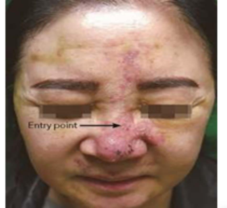 Hình 5.19 Hoại tử xa lan tỏa. 4 ngày sau nâng mũi bằng filler HA. Khối thuyên tắc gây hoại tử và mụn mủ ở chóp mũi và ảnh hưởng ĐM trên ròng rọc.