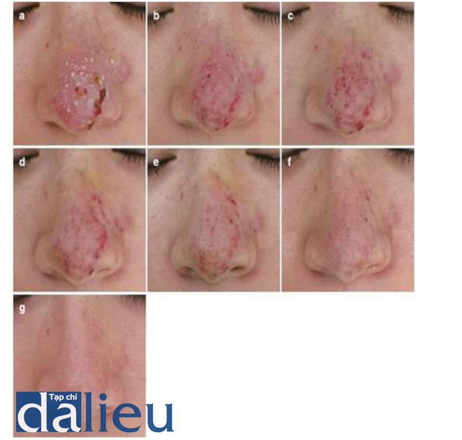 Hình 5.5 Tiến trình điều trị một ca hoại tử da khu trú nhẹ. Một ca hoại tử da khu trú tiến triển sau tiêm filler HA đã hồi phục với điều trị thích hợp. (a) Hình ảnh mũi bệnh nhân 3 ngày sau tiêm filler. Khu vực này trông nặng do có nhiều mụn mủ. (b) Mũi bệnh nhân 4 ngày sau tiêm filler và trước đợt điều trị đầu tiên. Mụn mủ có thể tiến triển trong vòng 2 – 4 ngày và nên được loại bỏ ít nhất 2 lần/ngày. (c) Mũi bệnh nhân 4 ngày sau tiêm filler và trước đợt điều trị thứ 2. Mụn mủ được loại bỏ 2 lần/ngày và giảm số lượng. (d) Mũi bệnh nhân 5 ngày sau tiêm filler. Khi không còn mụn mủ, tần suất thay gạc giảm xuống 1 lần/ngày để giúp da tái sinh. (e) Mũi bệnh nhân 6 ngày sau tiêm filler. Đắp gạc ướt, kín để tránh vết thương bị khô. (f) Mũi bệnh nhân 8 ngày sau tiêm filler. Ngưng đắp gạc một khi vết thương đã đủ ổn định. Mô phục hồi khá nhạy cảm với tia cực tím, cần nên cảnh báo bệnh nhân về nguy cơ tăng sắc tố sau viêm. (g) Mũi bệnh nhân 3 tuần sau tiêm filler cho thấy hồi phục hoàn toàn. Những vấn đề nhẹ như viêm da có thể xảy ra, do đó nên thăm khám, đánh giá bệnh nhân thường xuyên.