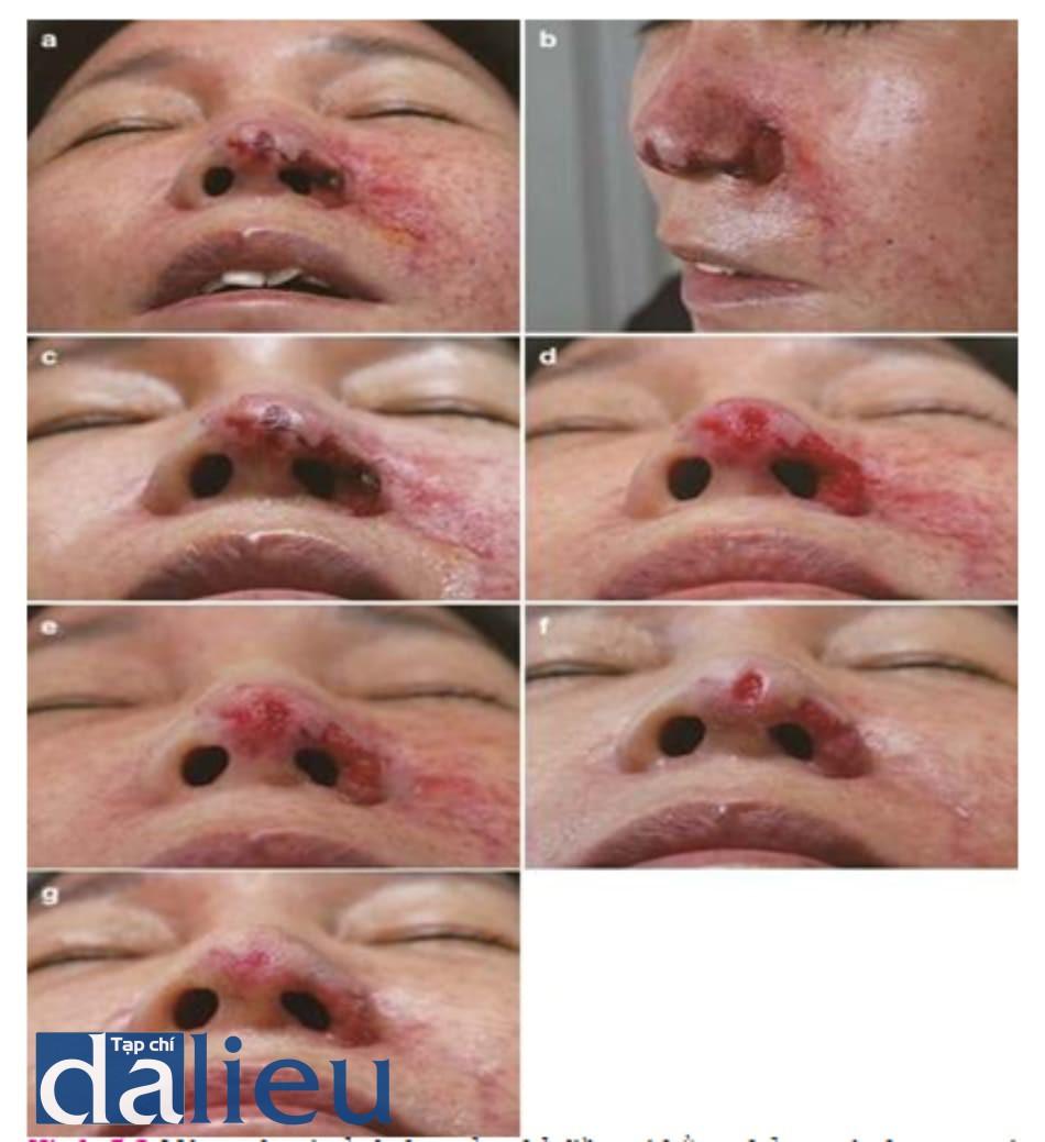 Hình 5.8 Một ca hoại tử da lan tỏa chỉ điều trị bằng thở oxy áp lực cao và thuốc giãn mạch. Hoại tử da lan tỏa do tiêm chất filler HA vào nếp mũi má và vùng phân bố ĐM mũi ngoài. Vết thương do chỉ dùng liệu pháp oxy cao áp. Da hồi phục nhờ cắt lọc, và đắp gạc kín để giúp lành thương. (a) Ảnh trước điều trị chụp ở thời điểm 11 ngày sau tiêm filler HA vào nếp mũi má. Vết thương phủ mài cứng và không ổn. (b) Ảnh trước điều trị. (c) Ảnh trước điều trị (nhìn từ dưới). (d) Ảnh sau cắt lọc. (e) 1 ngày sau điều trị. Thấy được các mô lành. (f) 9 ngày sau điều trị. Thấy được tái tạo biểu mô. (g) 14 ngày sau điều trị. Khuyết da được phủ bởi biểu mô. (h) Ví dụ về đắp gạc ướt, kín. Dùng kháng sinh, loại bỏ mài, và đắp gạc Vaseline để giữ vết thương ẩm là điều quan trọng. (i) Ví dụ về đắp gạc ướt, kín. Nên che cả khu vực hoại tử và khu vực tổn thương mạch.