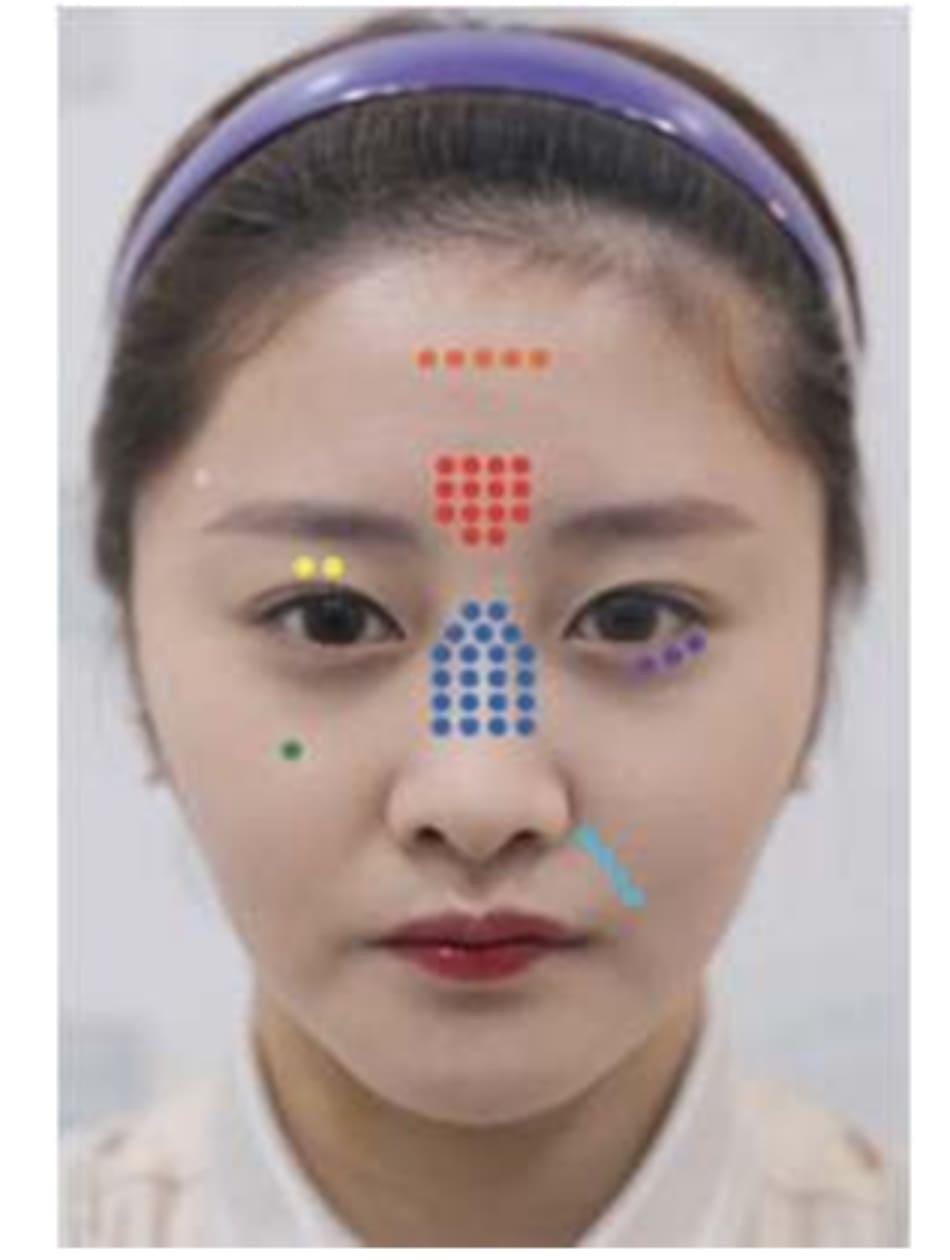 Hình 6.1 Tỉ suất biến chứng mắt. Chúng tôi tham khảo y văn xuất bản từ tháng 9, 2018 và tìm thấy vị trí thường gây tổn thương là mũi