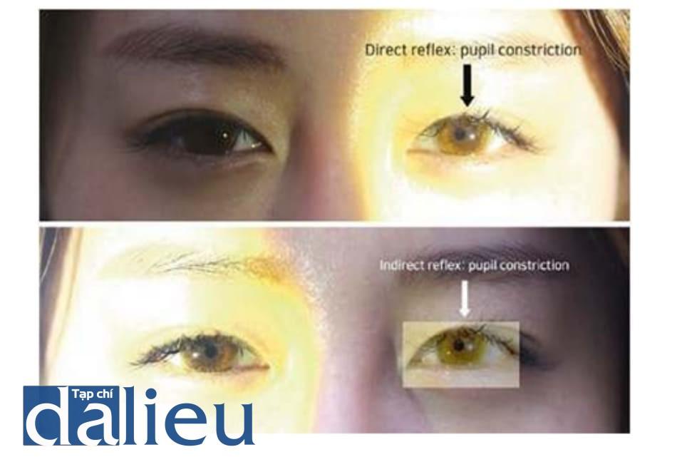 Hình 6.11 Phản xạ ánh sáng đồng tử. Nếu xuất hiện triệu chứng mắt sau tiêm filler, khám nghiệm đầu tiên nên bao gồm việc kiểm tra phản xạ ánh sáng trực tiêp và gián tiếp. Khi không còn phản xạ co đồng tử, cân nhắc điều trị tiêm hyaluronidase hậu nhãn cầu trước khi chuyển viện
