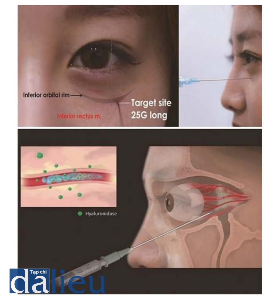 Hình 6.12 Kĩ thuật tiêm hyaluronidase hậu nhãn cầu. Đầu tiên, vẽ một đường dọc tưởng tượng từ đường khóe mắt ngoài, và tiếp cận rìa dưới ổ mắt bằng kim hay cannula. Kế đó, đi dọc nền ổ mắt và cảm nhận xương ổ mắt, tiếp cận về phía sau ít nhất 2.5 cm, và tiêm vào khoảng sau nhãn cầu. Hyaluronidase sẽ phân tách hyaluronic acid bằng cách khuếch tán, nên điều quan trọng là tiêm sớm nhất có thể
