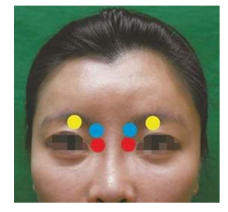 Hình 6.14 Khu vực đè ép. Đỏ: Đường đi ĐM sống mũi sau khi tiêm vào sống mũi. Xanh: Đường đi của ĐM trên ròng rọc sau khi tiêm vào diện trên gốc mũi. Vàng: Đường đi của ĐM trên ổ mắt sau khi tiêm trán. Khuyến cáo chèn ép kèm đường đi ĐM trên ròng rọc.