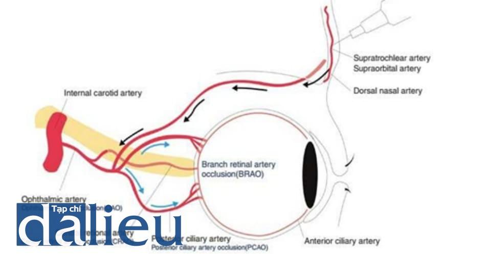 Hình 6.4 Sinh lý bệnh mù mắt. Tiêm filler vào các ĐM trên ròng rọc, ĐM trên ổ mắt và ĐM sống mũi gây biến chứng mắt do trào ngược filler vào ĐM mắt, và vị trí khối thuyên tắc sẽ chỉ ra mức độ của biến chứng
