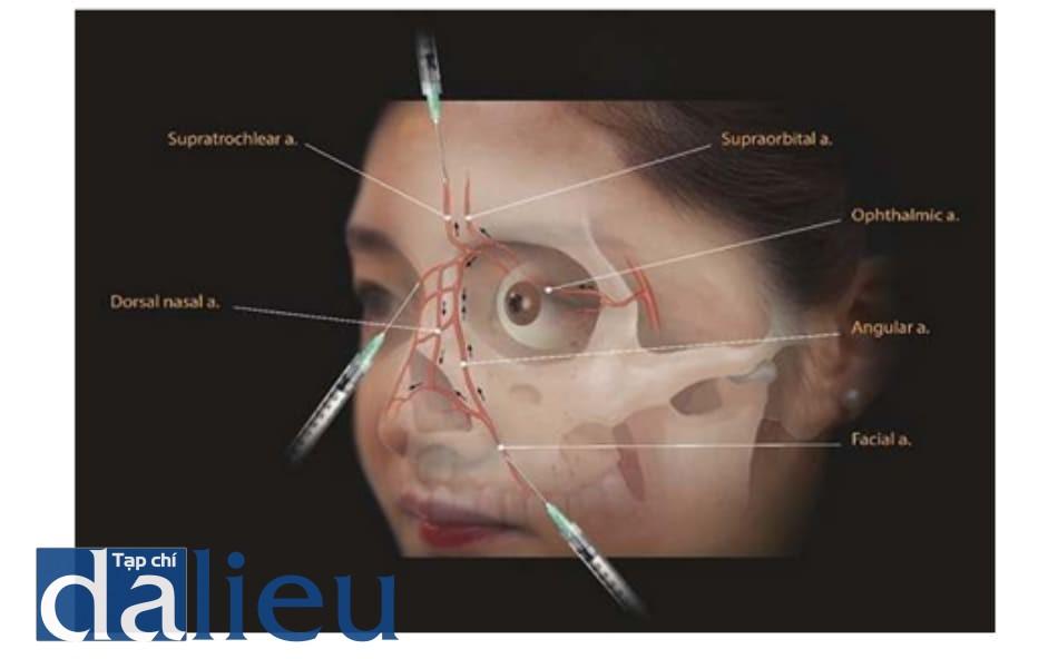 Hình 6.6 Sinh lý bệnh của biến chứng mắt do tiêm vào nếp mũi má. ĐM mặt khu trú ở nếp mũi má xuất phát từ nhánh ĐM cảnh ngoài và tương đối an toàn khỏi các nhánh ĐM cảnh trong. Tuy nhiên, ĐM mặt liên kết với ĐM sống mũi, và nếu tiêm áp lực cao sẽ dễ gây biến chứng mắt.