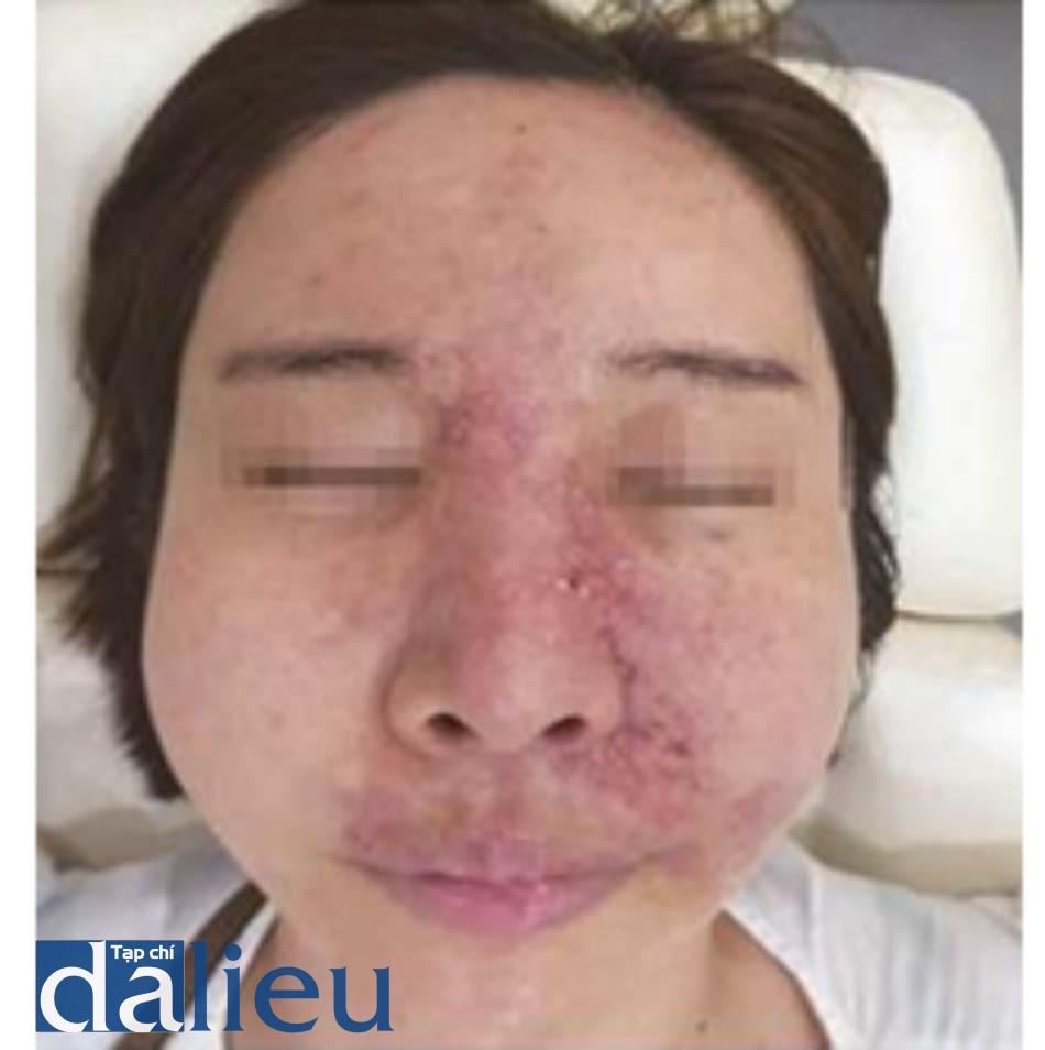 Hình 6.7 3 ngày sau tiêm chất filler HA vào nếp mũi má. Tiêm filler vào nếp mũi má bên trái và hoại tử da xảy ra vì chất filler đi hướng tới qua khu vực của ĐM sống mũi, và tạo ra cuộn mạch trên ròng rọc đối bên.