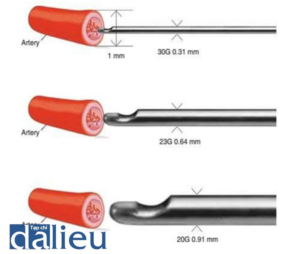 Hình 6.8 Khẩu kính ĐM so với khẩu kính kim. Đường kính của các ĐM trên ròng rọc, ĐM trên ổ mắt và ĐM sống mũi xấp xỉ 1 mm.