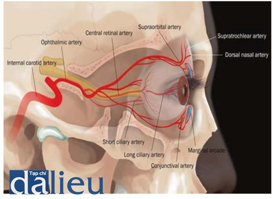 Hình 6.9 Đường đi ĐM mắt. Các ĐM trên ròng rọc, ĐM trên ổ mắt và ĐM sống mũi xuất phát từ các phân nhánh của ĐM mắt. Nên thao tác cẩn thận ở khu vực quanh ổ mắt.
