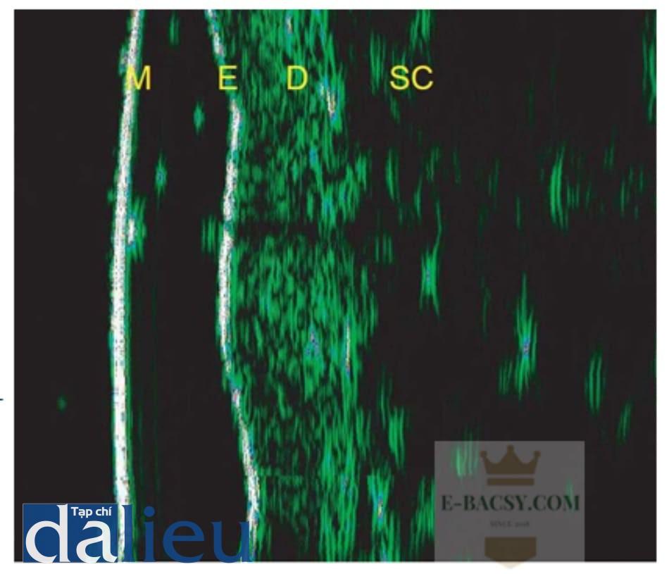 Hình 8.4 Bằng chứng về sự gia tăng echo dải SLEB sau 5 tuần điều trị bằng phương pháp mesother- apy