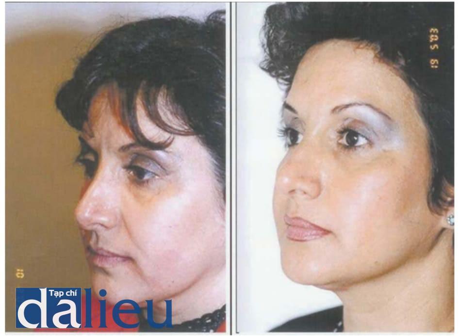 Hình 9.4 Bệnh nhân (a) trước và (b) sau điều trị.