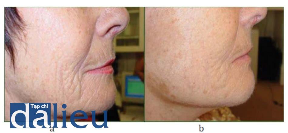 Hình 9.5 Bệnh nhân (a) trước và (b) sau điều trị.