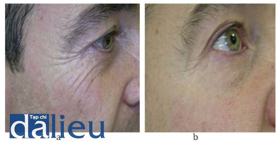 Hình 9.7 Bệnh nhân (a) trước và (b) sau điều trị.