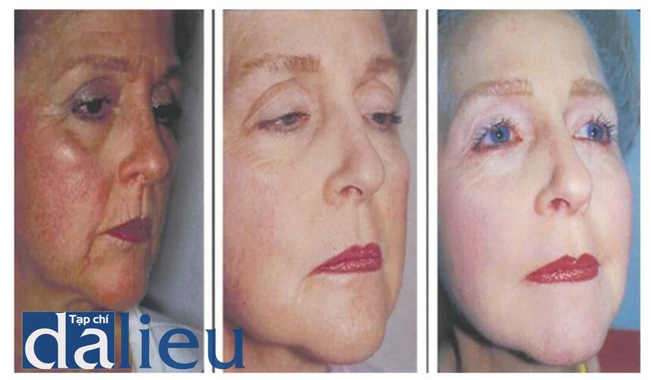 Hình 9.8 (a) Trước điều trị, (b) 4 tháng sau điều trị, và (c) 7 năm sau điều trị.