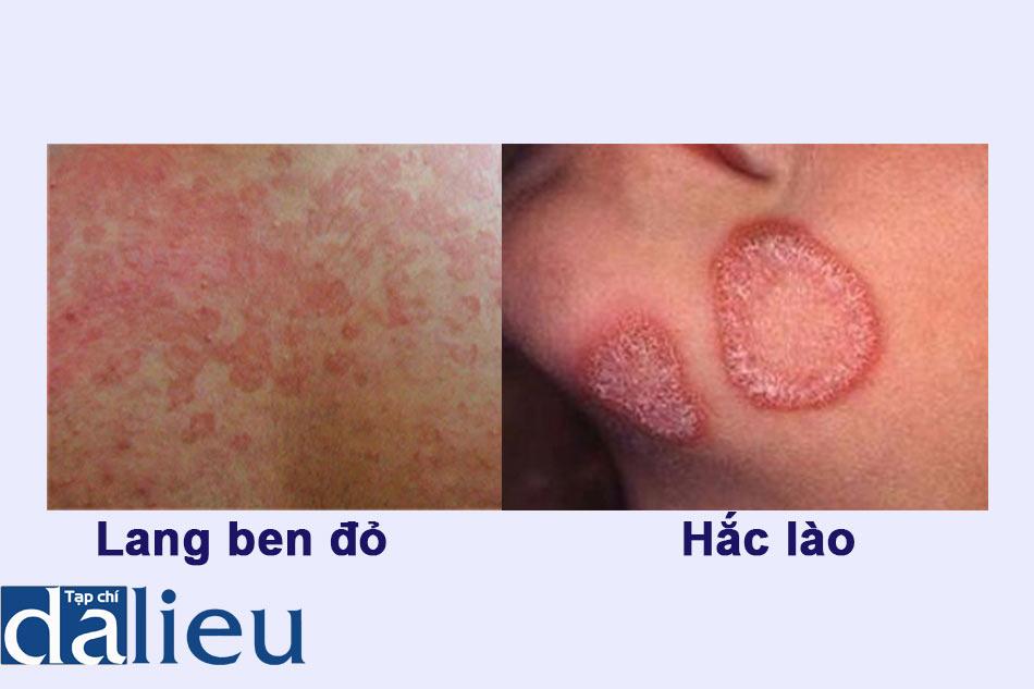 Phân biệt bệnh Lang ben đỏ và bệnh Hắc lào