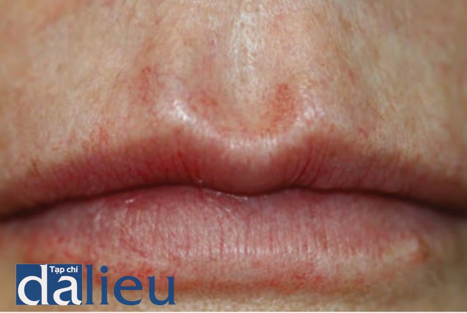 FIGURE 2 ● Ban đỏ kéo dài, vài năm sau khi điều trị làm đầy da (Restylane®, một sản phẩm tác dụng lâu dài).