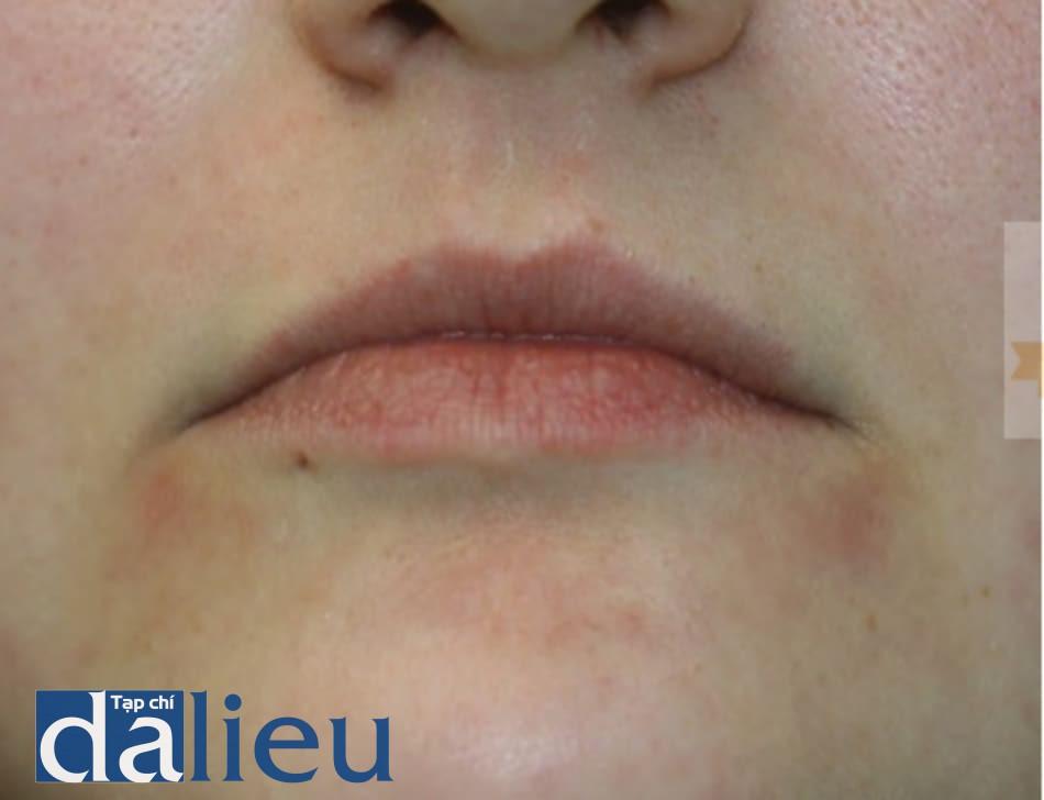 FIGURE 3 ● Ban đỏ kéo dài, 3 tháng sau khi điều trị làm đầy da (Evolence ™, một chất độn collagen bán vĩnh viễn).