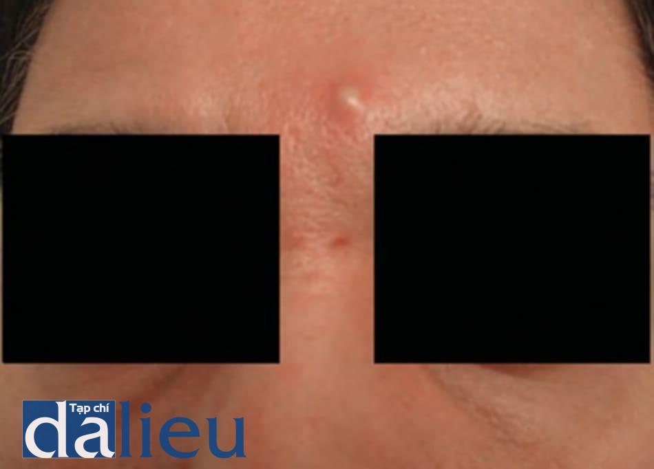 FIGURE 4 ● Nhiễm trùng khối u, 2 tuần sau khi điều trị làm đầy da (Aquamid®, chất làm đầy vĩnh viễn polyacrylamide) (Được cấp phép của L. H. Christensen, M.D.).