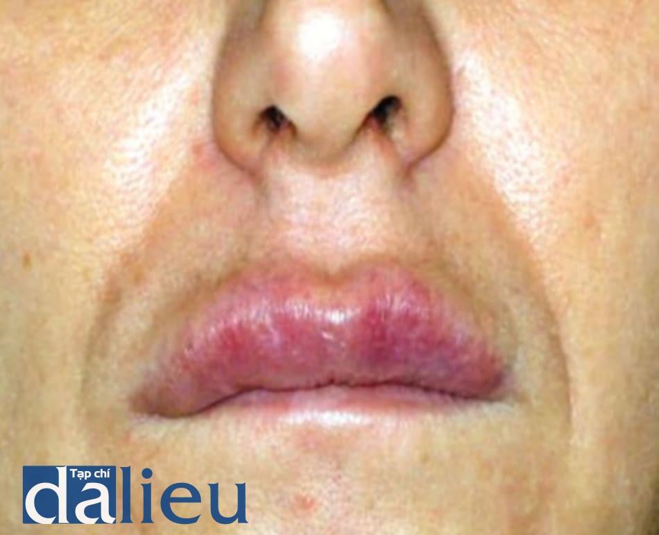 FIGURE 5 ● Granuloma, 3 năm sau khi điều trị làm đầy da da (Dermalive®, chất làm đầy hydrogel acrylic vĩnh viễn) (Được phép của L. H. Chris-tensen, M.D.).