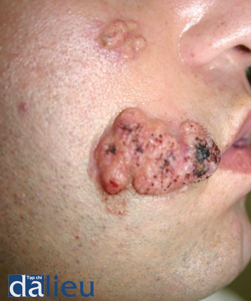 FIGURE 7 ● U gai sừng, 2 tháng sau khi điều trị làm đầy da (collagen) (Theo L. Baumann, M.D.).