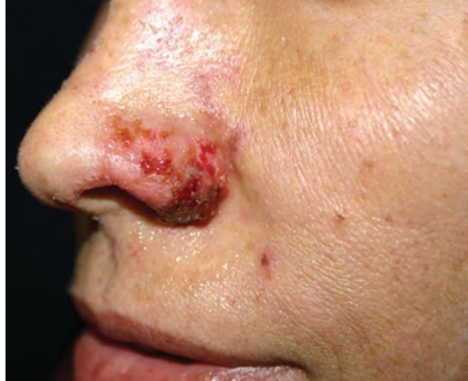 FIGURE 8 ● Hoại tử cánh mũi sau điều trị làm đầy da (theo L. Baumann, M.D.).