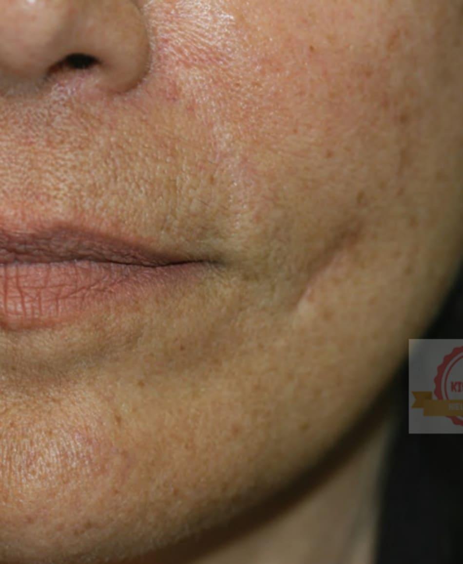 FIGURE 9 ● Sẹo, 1 năm sau khi điều trị làm đầy da (chất béo tự hủy).