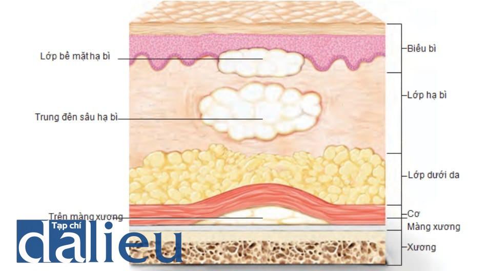 FIGURE 13 ● Độ sâu tiêm của chất làm đầy da.