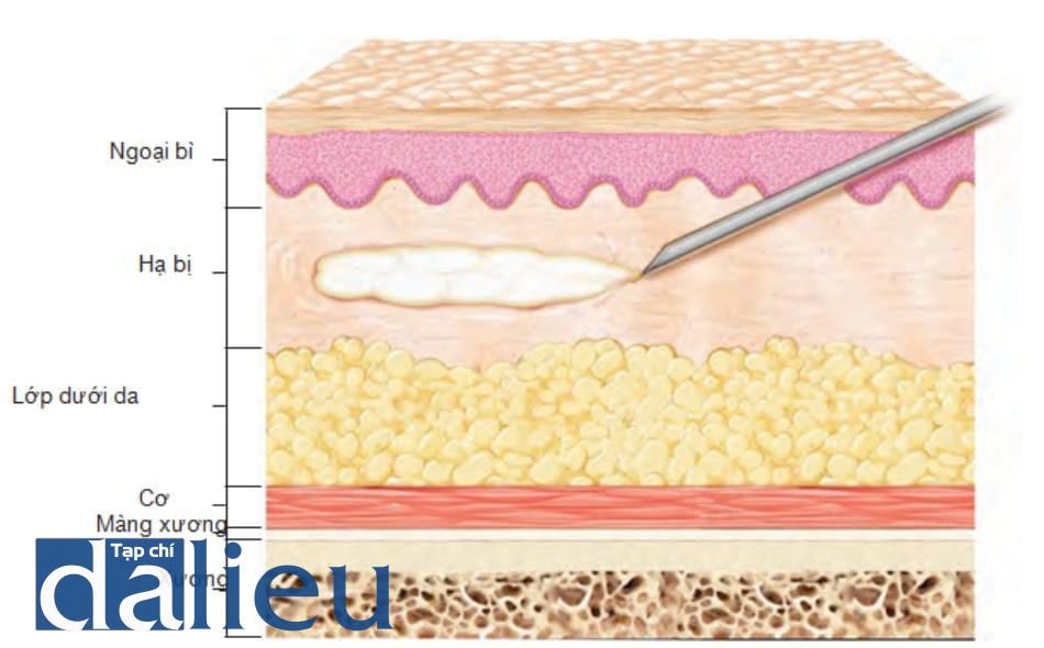 FIGURE 14 ● Kỹ thuật tiêm luồng tuyến tính với chất làm đầy da.