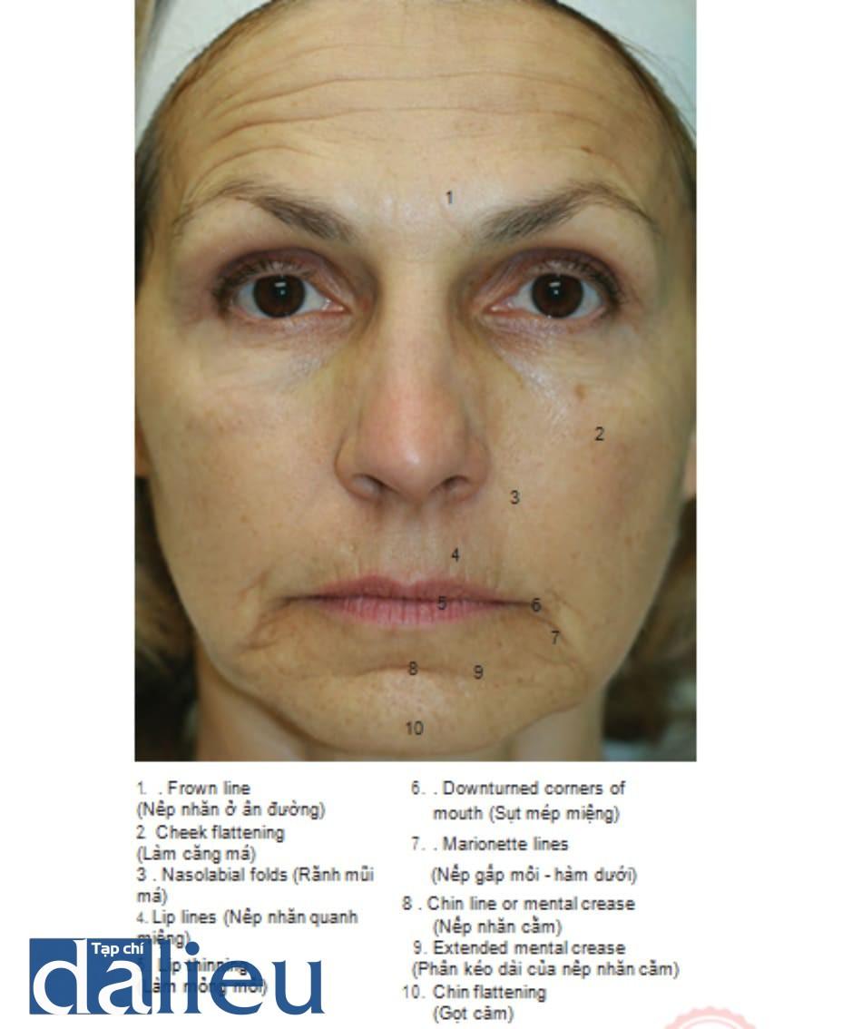 FIGURE 1 ● Nếp nhăn, nếp gấp và đường viền bất thường của khuôn mặt mặt — trước - sau (thuật ngữ y khoa)