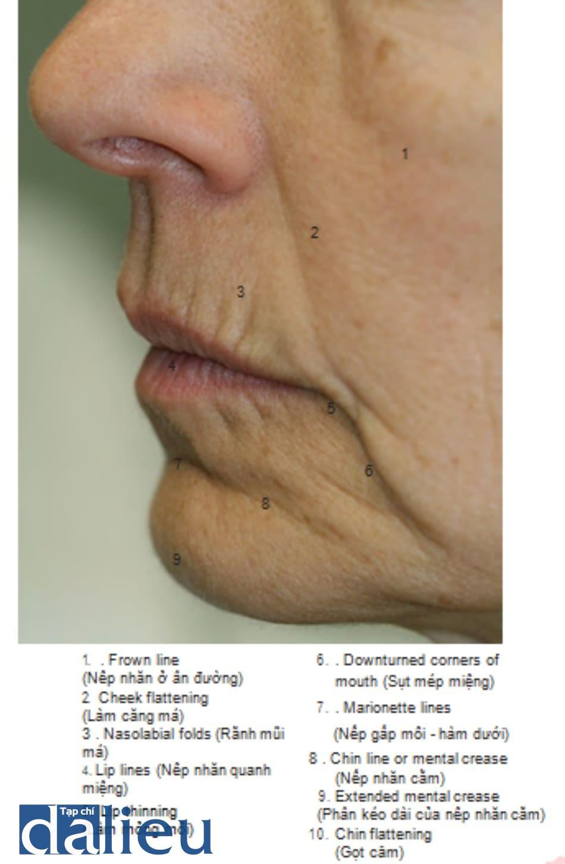 FIGURE 2 ● Nếp nhăn, nếp gấp và đường viền bất thường của khuôn mặt — góc bên (thuật ngữ y khoa)
