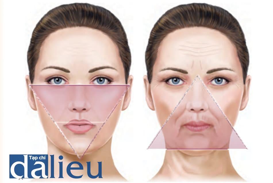 FIGURE 3 ● Quá trình lão hóa của các đường nét trên khuôn mặt từ trẻ trung (A) đến có tuổi (B).