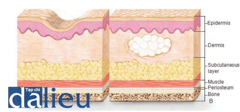 FIGURE 6 ● Cơ chế tác động của chất độn da.
