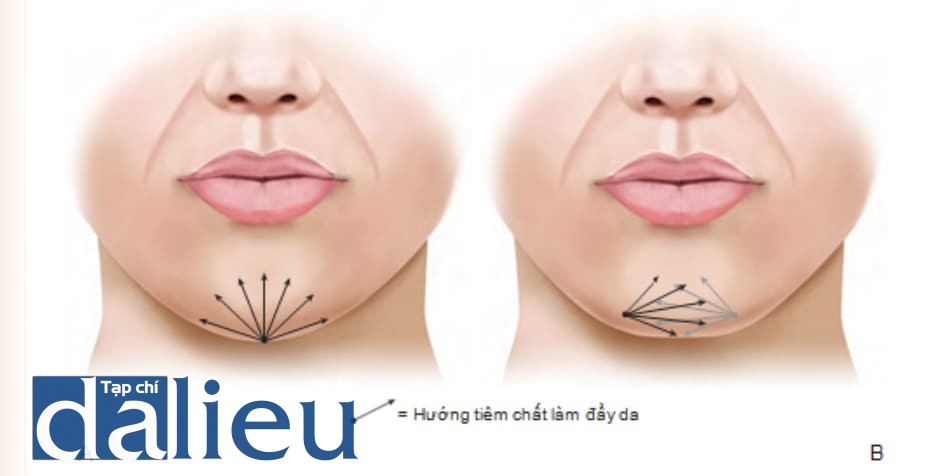 FIGURE 4 ● Tổng quan về tiêm làm đầy da cho cằm cho các cằm hình tam giác (A) và hình vuông (B).