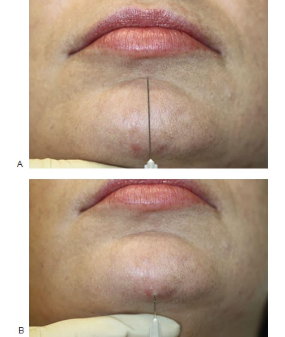 FIGURE 5 ● Nâng cằm bằng chất làm đầy da: xác định điểm chèn kim (A) và kỹ thuật tiêm (B).