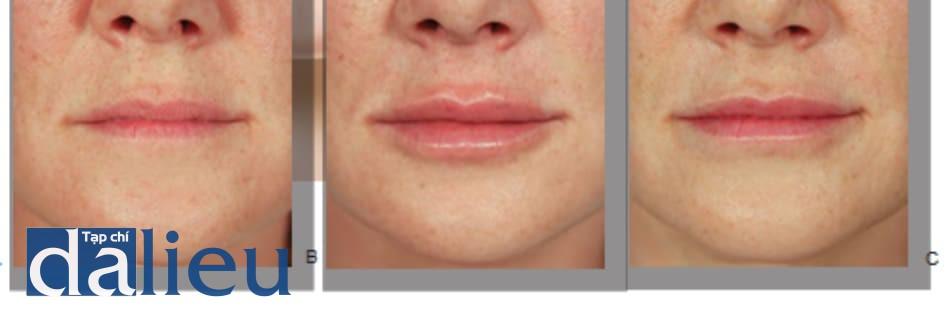FIGURE 1 ● bơm viền môi trước (A), ngay sau (B), và 1 tuần sau khi điều trị làm đầy da (C), sử dụng axit hyaluronic.