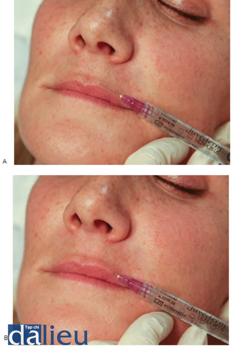 FIGURE 3 ● Lần tiêm đầu tiên cho điều trị làm đầy da của viền môi trên: xác định điểm chèn kim (A) và kỹ thuật tiêm (B).